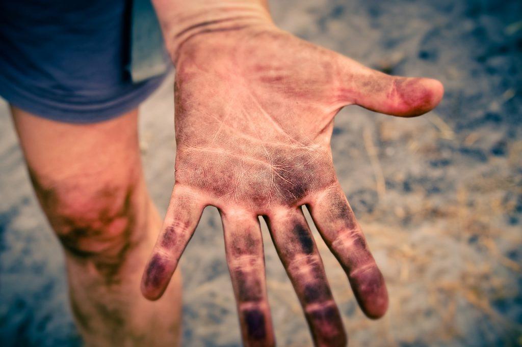Špinavá ruka